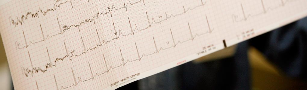 EKG results printout